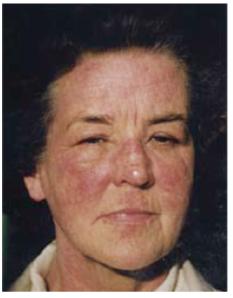 Jennifer Worth at the worst of her eczema